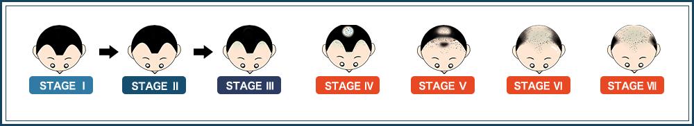 Alopecia Stage