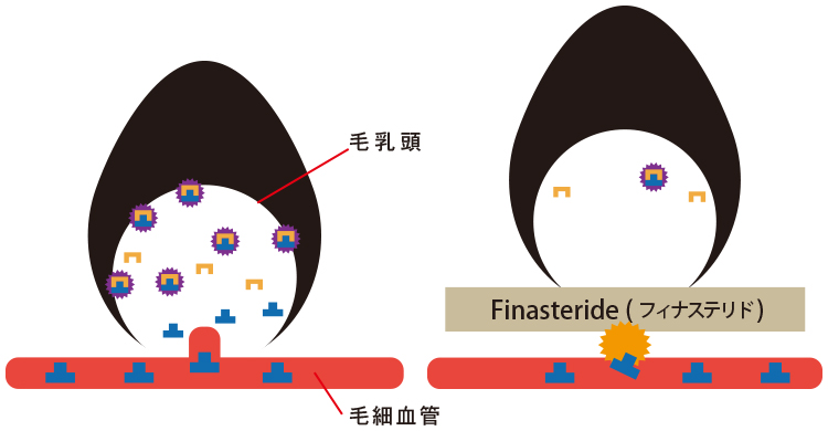 フィナステリドの働き図
